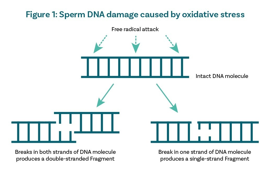Sperm DNA damage caused by oxidative stress